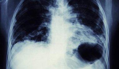 Akciğer hastalıkları genetik ve çevresel etkenlere bağlı gelişebiliyor