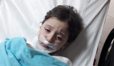 Köpeklerin saldırısına uğrayan 5 yaşındaki çocuk yaralandı
